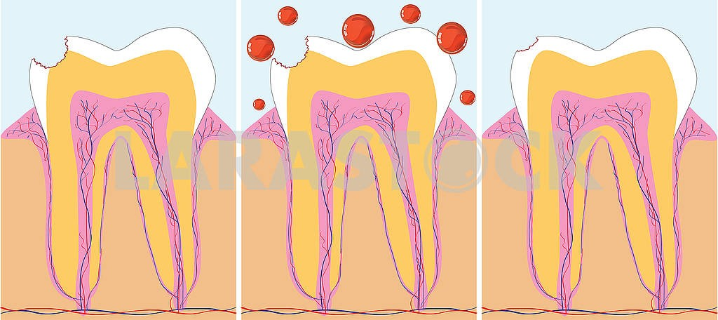 Three phase of caries treatment — Image 79261